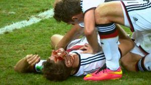 Thomas-Muller-bloody